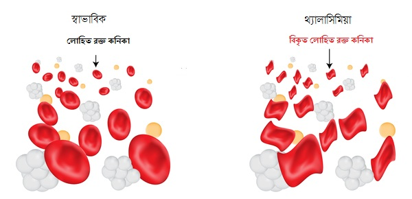 Changes in RBC of a thalassemia patient.
